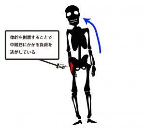 変形性股関節症|デュシェンヌ歩行