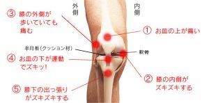 膝関節に痛みが出るシーンと箇所の図説