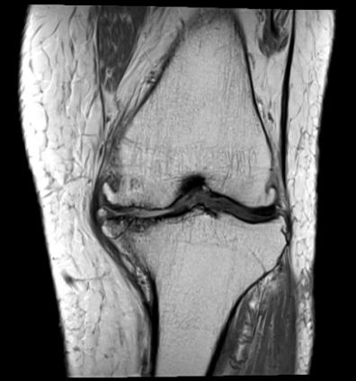 【変形性膝関節症】の仕組み