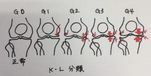 変形性膝関節症のステージ分類