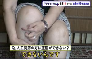 左膝に人工関節手術、右膝に再生医療を受けた患者さま
