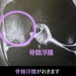 骨髄浮腫を起こした膝関節のMRI画像